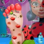Ladybug Foot Surgery